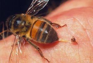 allergicheskaja-reakcija-na-ukus-pchely_1_1 (1)